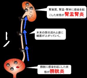 腎盂腎炎及び膀胱炎の図、イラスト