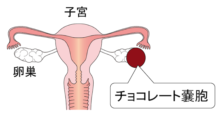 卵巣チョコレートのう胞の図、イラスト