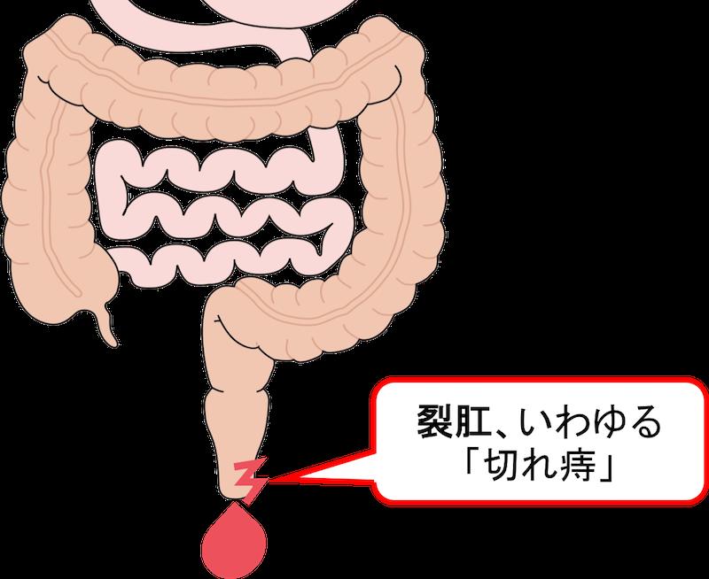 幼児 血便